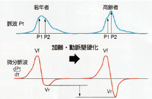 AVIの原理図